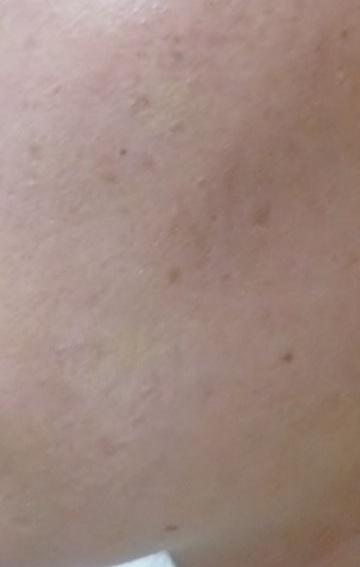 広島プルミエクリニックのホクロ除去・あざ治療・イボ治療の症例写真[アフター]
