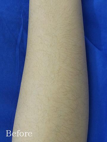フェミークリニックの医療レーザー脱毛の症例写真[ビフォー]