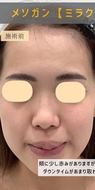 Kalon Clinic(カロンクリニック)のシミ取り・肝斑・毛穴治療の症例写真[ビフォー]