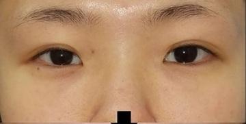 湘南美容クリニック赤羽院の目元の整形、くま治療の症例写真[ビフォー]