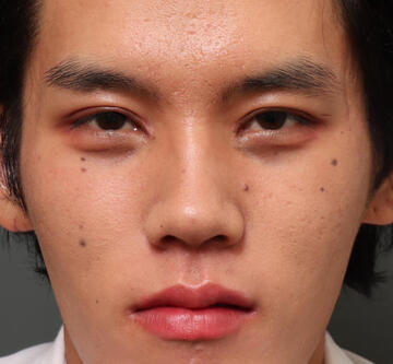 オザキクリニック LUXE新宿の目・二重の整形の症例写真[アフター]