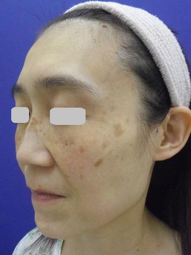 e-maxSRのシミ治療の症例写真[ビフォー]