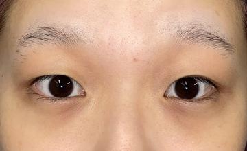 湘南美容クリニック 池袋西口院の目・二重整形の症例写真[ビフォー]