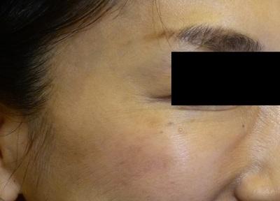 【40代女性・目尻のシワ】ボトックス注射の症例写真[アフター]