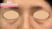 湘南美容クリニック静岡院の目元の整形、くま治療の症例写真[ビフォー]