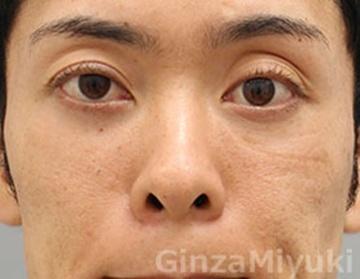 銀座みゆき通り美容外科の症例写真[アフター]