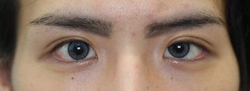 大塚美容形成外科 東京大塚院の目・二重の整形の症例写真[アフター]