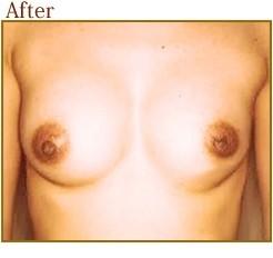 陥没乳頭治療の症例写真ですの症例写真[アフター]