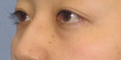 目の下の切らないたるみ取り+コンデンスリッチフェイスの症例写真[ビフォー]