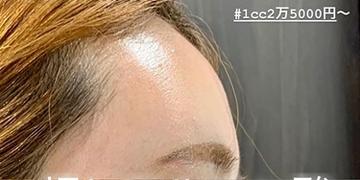 ルラ美容クリニック 高田馬場院の顔の整形(輪郭・顎の整形)の症例写真[ビフォー]