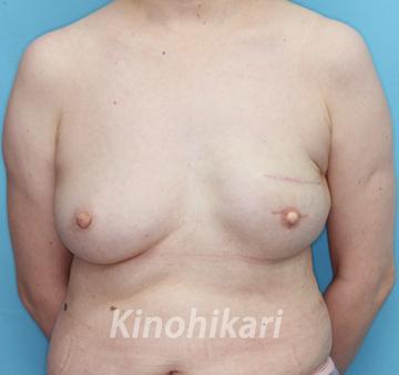樹のひかり形成外科・皮ふ科の乳首・乳輪の整形の症例写真[アフター]