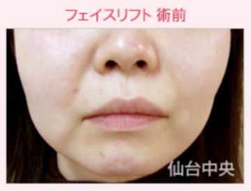 仙台中央クリニックの顔のしわ・たるみの整形(リフトアップ手術)の症例写真[ビフォー]