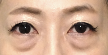 TCB東京中央美容外科 梅田大阪駅前院のその他の美容整形の症例写真[ビフォー]