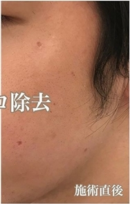 西宮SHUHEI美容クリニックのホクロ除去・あざ治療・イボ治療の症例写真[アフター]