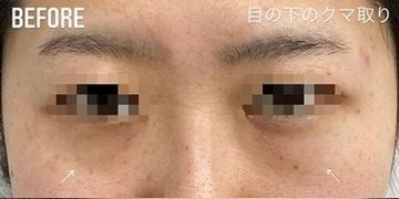 GLANZ CLINIC (グランツクリニック)の目元整形・クマ治療の症例写真[ビフォー]