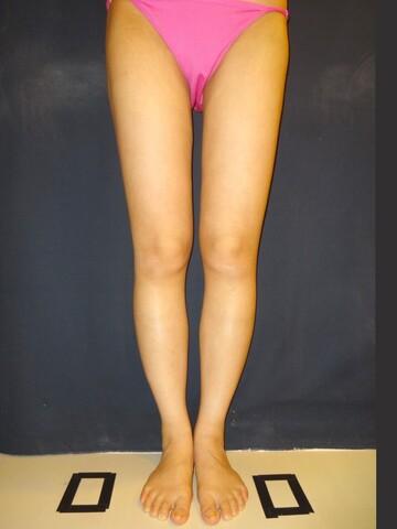 水の森美容外科の脂肪吸引の症例写真[アフター]