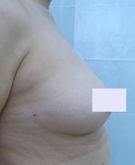 新宿ビューティークリニックの豊胸手術(胸の整形)の症例写真[ビフォー]