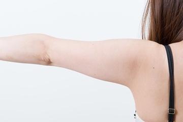 新宿中央クリニックの脂肪吸引の症例写真[ビフォー]