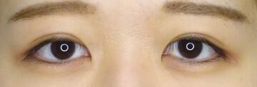 TCB 東京中央美容外科の目・二重の整形の症例写真[アフター]
