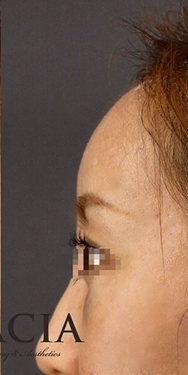 GRACIA clinic(グラシアクリニック)の顔の整形(輪郭・顎の整形)の症例写真[アフター]