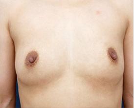シリコンバッグによる豊胸術(術後1ヶ月)の症例写真[ビフォー]