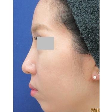理想の鼻の形を整える 《鼻尖縮小・小鼻縮小・耳介軟骨移植》の症例写真[アフター]