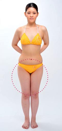 城本クリニックの脂肪吸引の症例写真[ビフォー]