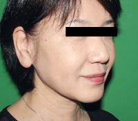 リードファインリフト+ヒアルロン酸注入 術前+術後の症例写真[アフター]