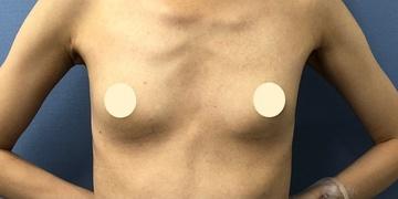 湘南美容クリニック 川崎院の豊胸手術(胸の整形)の症例写真[ビフォー]