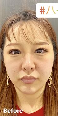 ルラ美容クリニック 高田馬場院のシワ・たるみ(照射系リフトアップ治療)の症例写真[ビフォー]