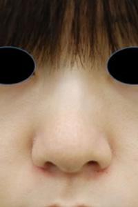 みずほクリニックの鼻の整形の症例写真[アフター]