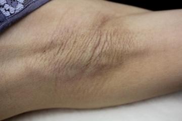 のわきが手術・多汗症治療の症例写真[ビフォー]