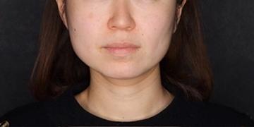 SELECT CLINIC(セレクトクリニック)の顔の整形(輪郭・顎の整形)の症例写真[ビフォー]