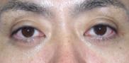 湘南美容クリニック横須賀中央院の目元の整形、くま治療の症例写真[アフター]