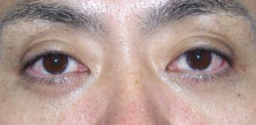 湘南美容クリニック 横須賀中央院の目元の整形、くま治療の症例写真[アフター]