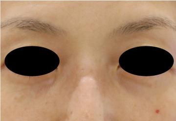 すなおクリニックの目・二重の整形の症例写真[アフター]