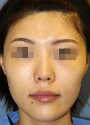 プリモ麻布十番クリニックの鼻の整形の症例写真[ビフォー]
