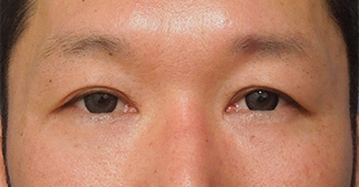 の目元の整形、くま治療の症例写真[ビフォー]