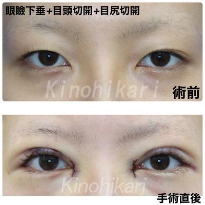 眼瞼下垂+目頭切開+目尻切開の症例写真