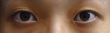 東京中央美容外科・美容皮膚科の目・二重の整形の症例写真[ビフォー]