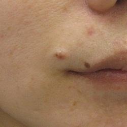 はなふさ皮膚科のホクロ除去・あざ治療・イボ治療の症例写真[ビフォー]