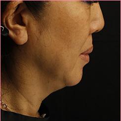城本クリニックのシワ・たるみ(照射系リフトアップ治療)の症例写真[ビフォー]