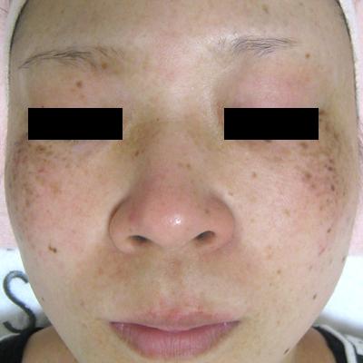 肝斑、ADM治療:レーザートーニング、Qスイッチヤグなど[ビフォー]