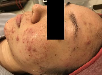 ローズマリークリニックのニキビ治療・ニキビ跡の治療の症例写真[ビフォー]