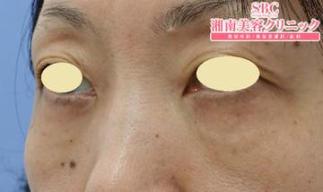 湘南美容クリニック名古屋 栄院の目元の整形、くま治療の症例写真[アフター]