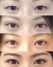 リッツ美容外科 大阪院の症例写真
