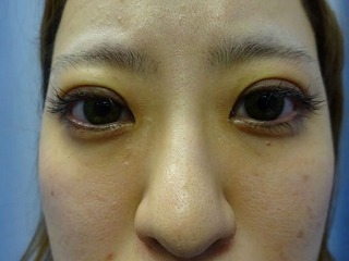 鹿児島三井中央クリニックの目・二重の整形の症例写真[アフター]