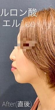 ルラ美容クリニック高田馬場院の顔の整形(輪郭・顎の整形)の症例写真[アフター]