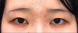湘南美容クリニック新潟院の目・二重の整形の症例写真[ビフォー]