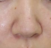 タウン形成外科クリニック【美容外科・美容皮膚科】の症例写真[ビフォー]